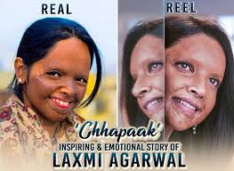 Chhapaak movie can be impactful to change the mindset of the people